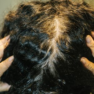 Light colored roots make it appear as if balding
