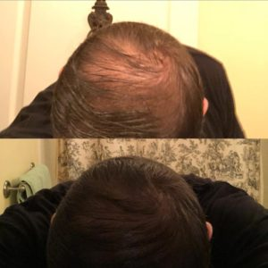 Cover bald spot with hair thickening gel 4RootZ